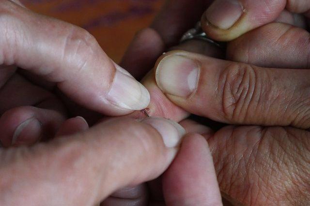 wound-2553781_640